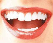 denti carie devitalizzazione