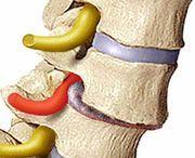 ernia del disco intervertebrale 150x146