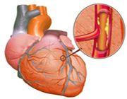 colesterolo nuovi farmaci