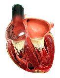 cuore sindrome coronarica acuta