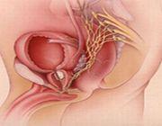 prostata terapia botulino