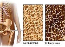Osteoporosi, molti malati senza saperlo