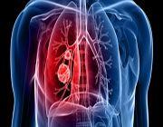 polmoni danni inquinamento