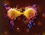 tumori inizio cellula