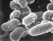 sclerosi multipla batterio