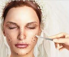 Wedding surgery, la chirurgia estetica prematrimoniale