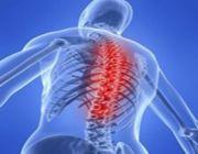 colonna vertebrale chifoplastica