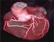 coronarie tac necessario
