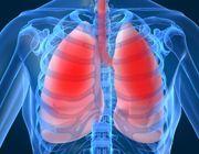 fibrosi polmonare farmaco