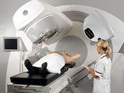 effetti collaterali radioterapia