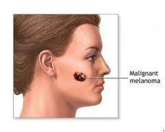 melanoma, sempre più diffuso