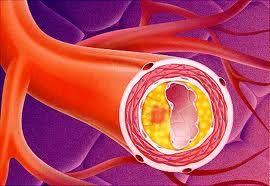 Aterosclerosi, rischio anche per i giovani