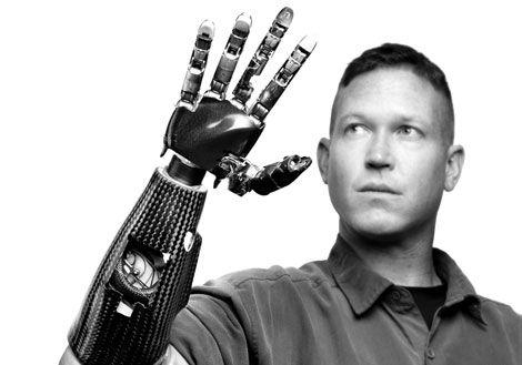 protesi robotiche sensibilita
