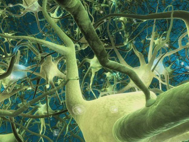 risonanza magnetica immagini cervello