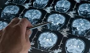 Diagnosi della psicosi con esame del cervello