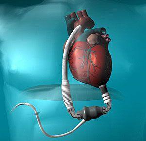 italia impiantato cuore artificiale