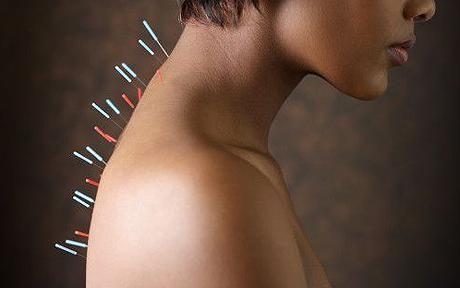 agopuntura tecnica sicura bambini adolescenti