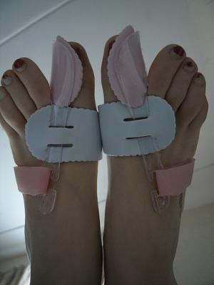chirurgia mininvasiva disturbi piede
