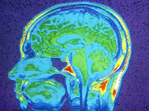 aree cervello pazienti coma comunicare