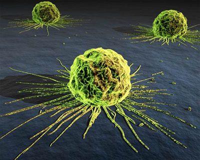invecchiamento cellule tumorali crescita neoplasia