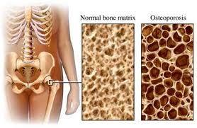 Osteoporosi, dalla ricerca novità salva ossa