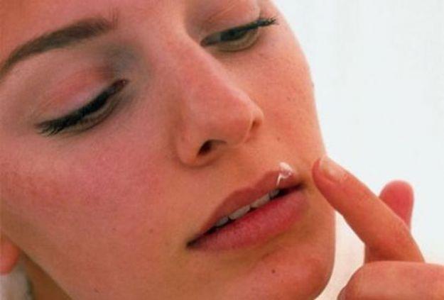 herpes labiale malattia infettiva labbra