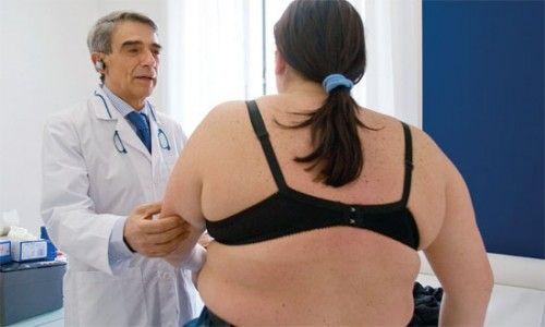 obesita alterazioni cerebrali ricerche