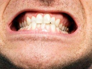 stress digrignamento denti