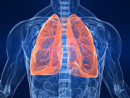 BPCO definizione sintomi cure malattia diffusa
