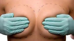 Decesso di una donna post rimozione delle protesi al seno