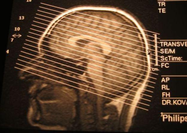 ictus cerebrale cranio