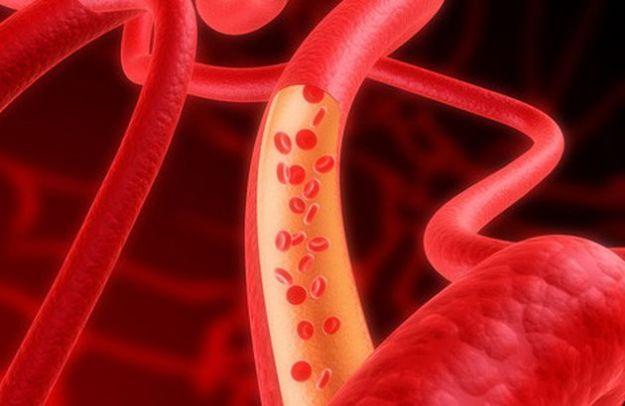malattie sangue numero verde