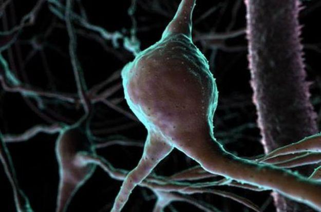demenza proteina progranulina