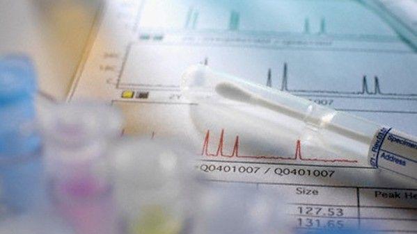 Test genetico per la sindrome di down ed edwars