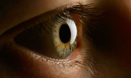 cornea guttata sintomi terapia