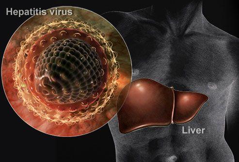 epatite a sintomi cure vaccino