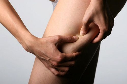 vene varicose cause rimedi operazione