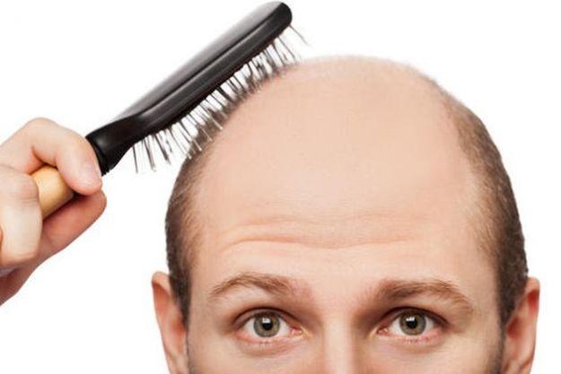alopecia cause cure