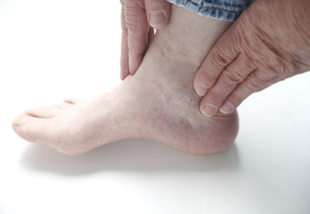 frattura del malleolo composta scomposta sintomi operazione riabilitazione