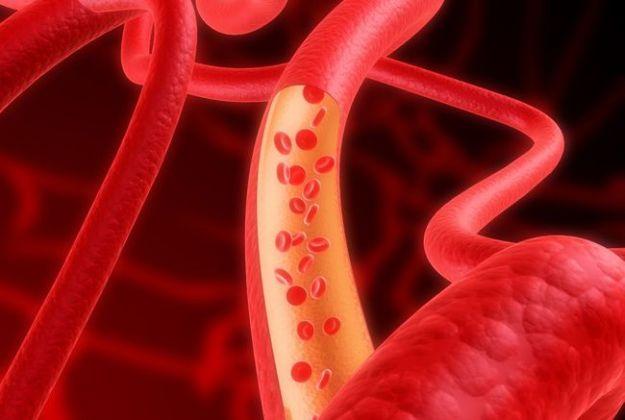 ischemia sintomi tipologie linee guida