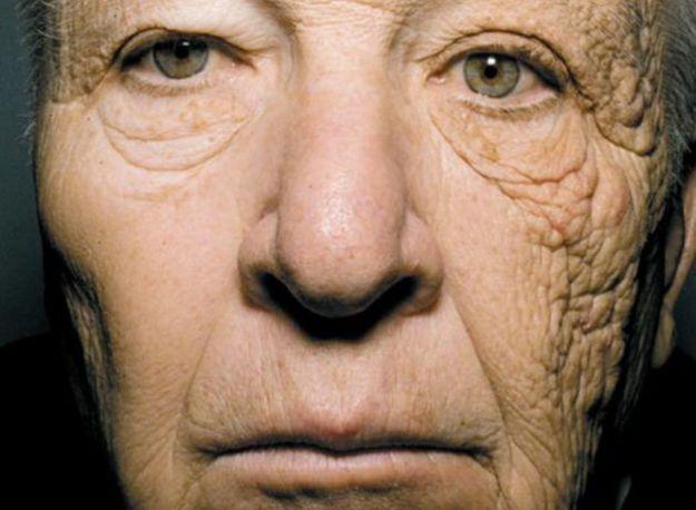 come invecchia la pelle scottata raggi ultravioletti sole