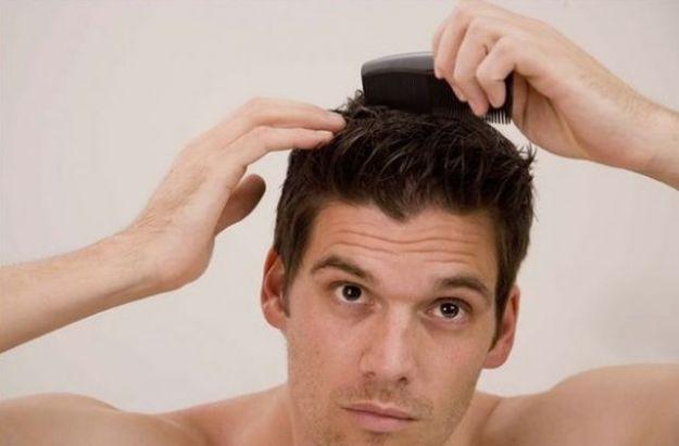 caduta dei capelli nell uomo cause rimedi efficaci