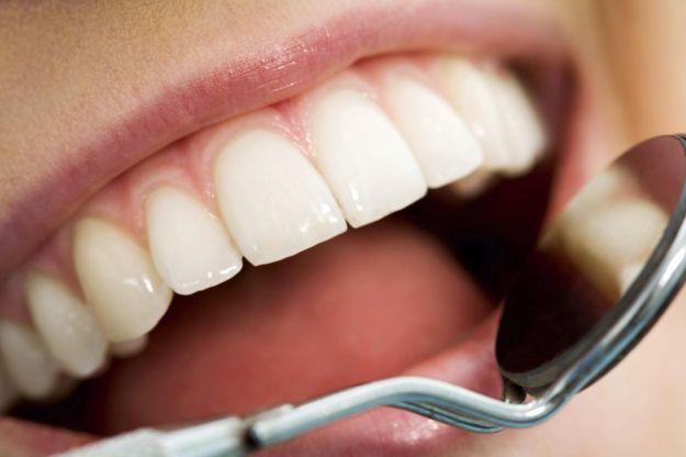 i rimedi contro il dolore ai denti_032a11285f526ad093f33492dc762f98