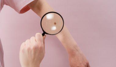 Melanoma, cause e sintomi