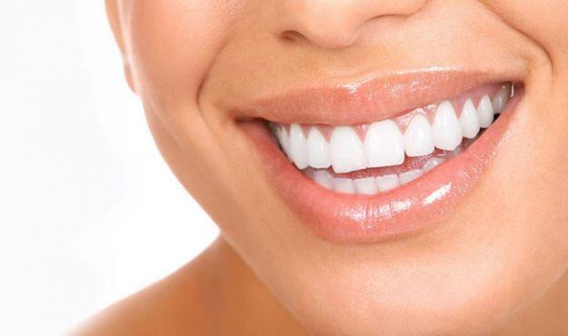 malocclusione dentale sintomi cause rimedi