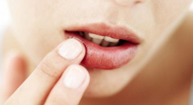 edema labiale sintomi cause rimedi