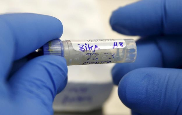 virus zika sintomi microcefalia diffusione italia
