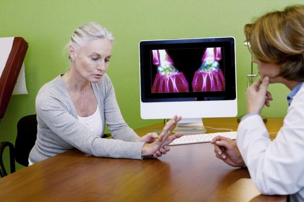 rimedi naturali artrite migliori