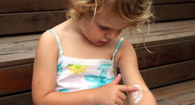 sudamina bambini rimedi naturali