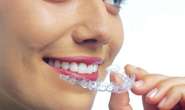 bite dentale cos e tipi costi